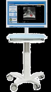SmartTarget biopsy system